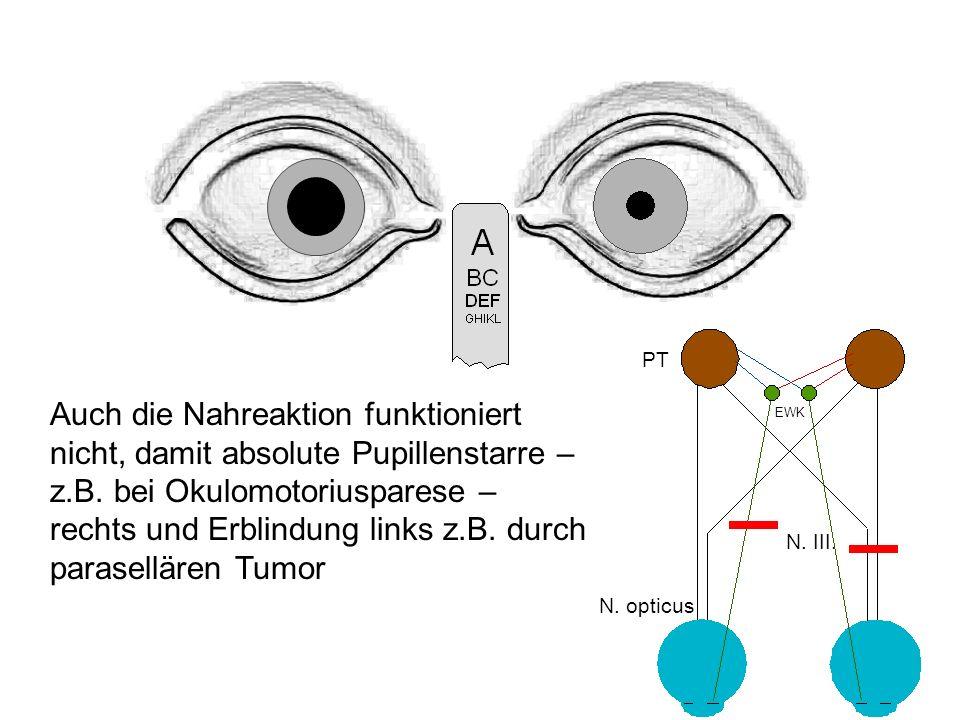 Auch die Nahreaktion funktioniert nicht, damit absolute Pupillenstarre – z.B.