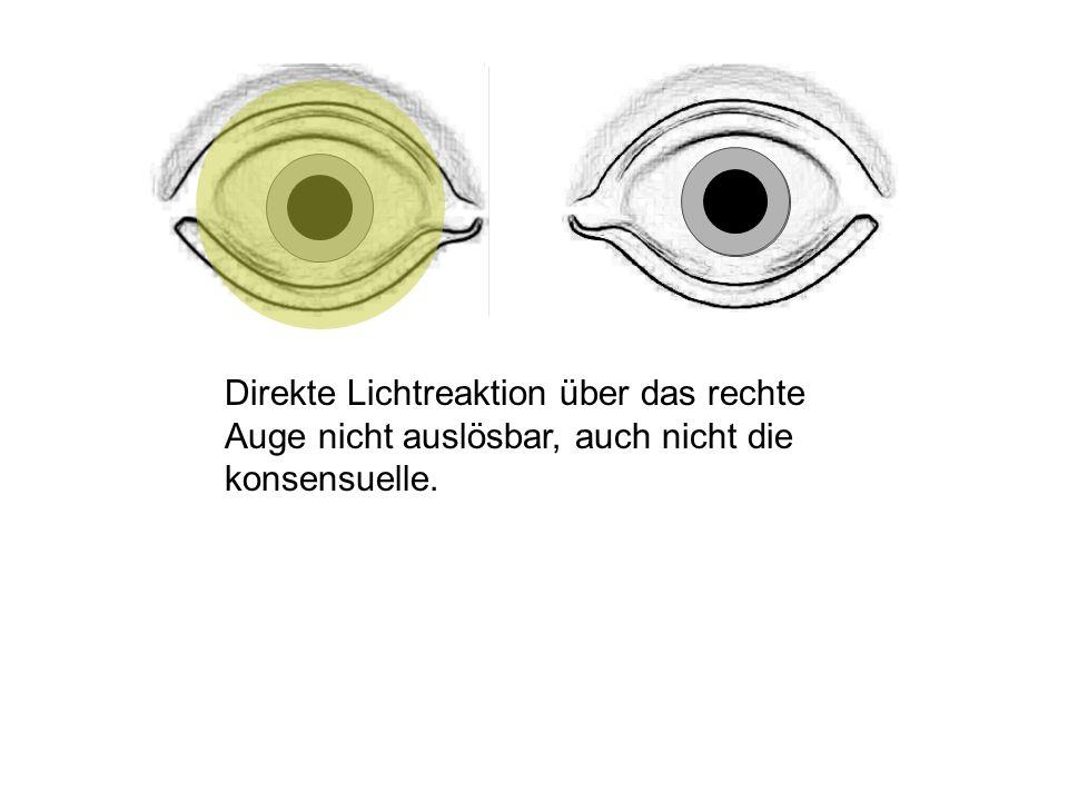 Direkte Lichtreaktion über das rechte Auge nicht auslösbar, auch nicht die konsensuelle.