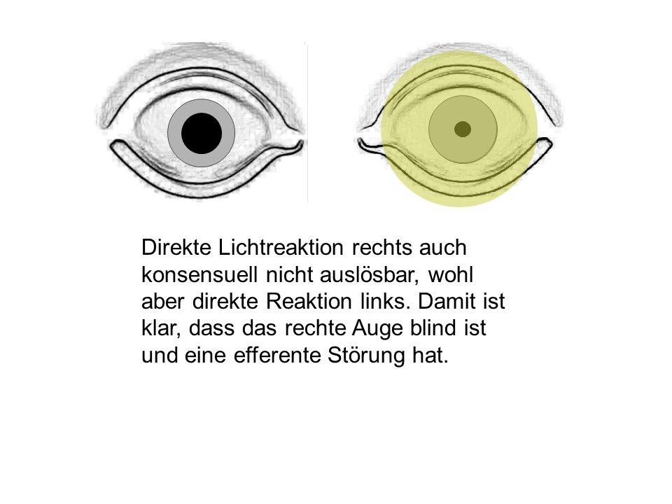 Direkte Lichtreaktion rechts auch konsensuell nicht auslösbar, wohl aber direkte Reaktion links.