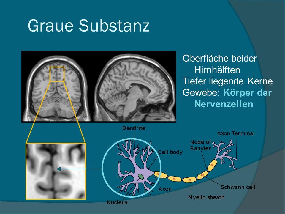 Oberfläche beider Hirnhälften Tiefer liegende Kerne Gewebe: Körper der Nervenzellen Graue Substanz