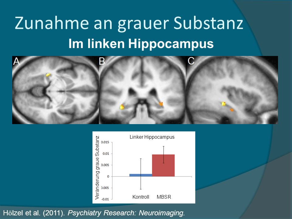 Im linken Hippocampus Zunahme an grauer Substanz H ӧ lzel et al. (2011). Psychiatry Research: Neuroimaging. Veränderung graue Substanz Linker Hippocam