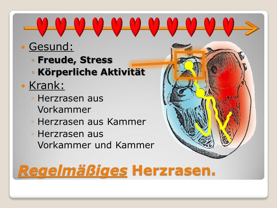 Regelmäßiges Herzrasen. Gesund: Freude, StressFreude, Stress Körperliche AktivitätKörperliche Aktivität Krank: Herzrasen aus Vorkammer Herzrasen aus K