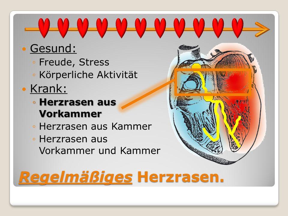 Regelmäßiges Herzrasen. Gesund: Freude, Stress Körperliche Aktivität Krank: Herzrasen aus VorkammerHerzrasen aus Vorkammer Herzrasen aus Kammer Herzra
