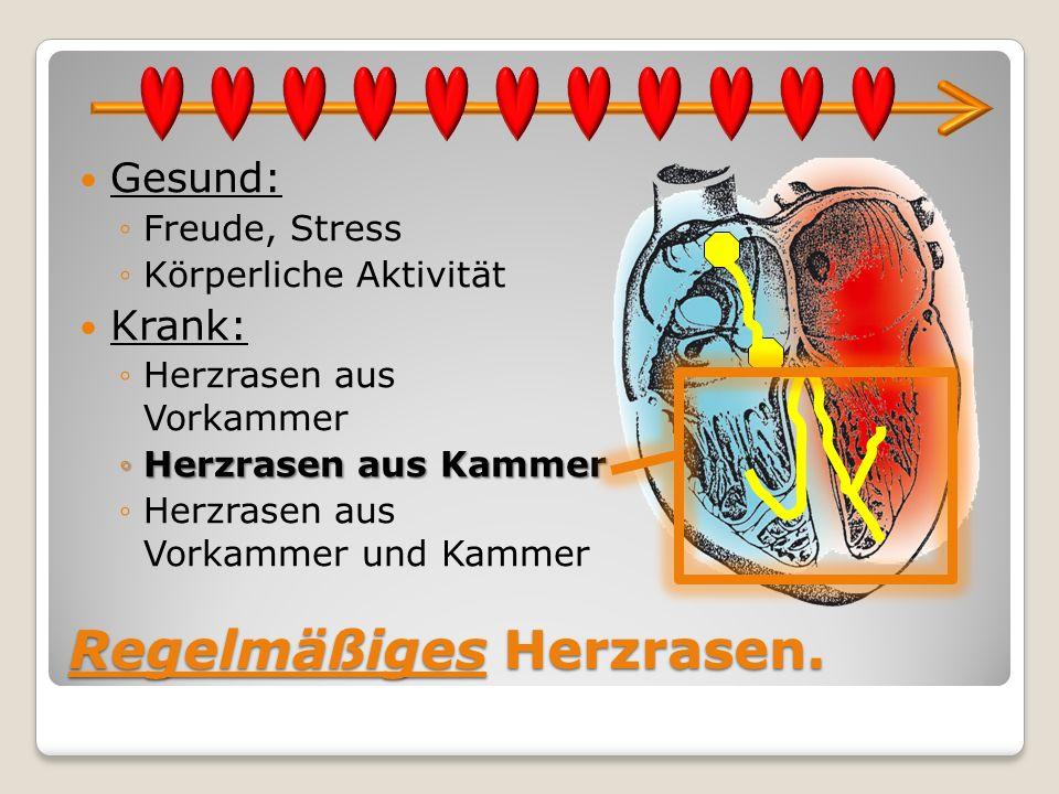 Regelmäßiges Herzrasen. Gesund: Freude, Stress Körperliche Aktivität Krank: Herzrasen aus Vorkammer Herzrasen aus KammerHerzrasen aus Kammer Herzrasen