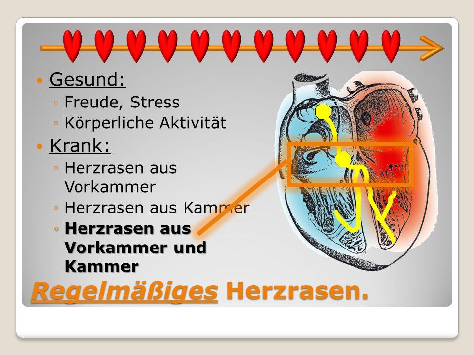 Regelmäßiges Herzrasen. Gesund: Freude, Stress Körperliche Aktivität Krank: Herzrasen aus Vorkammer Herzrasen aus Kammer Herzrasen aus Vorkammer und K