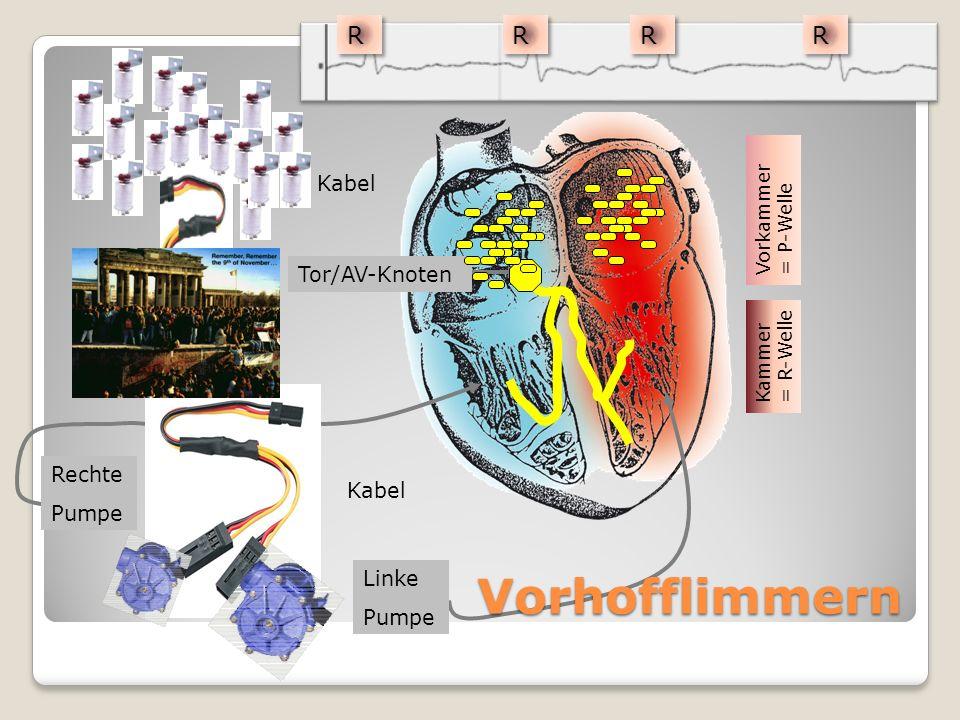 Kabel Linke Pumpe Rechte Pumpe Tor/AV-Knoten Kabel Vorhofflimmern Vorkammer = P-Welle Kammer = R-Welle