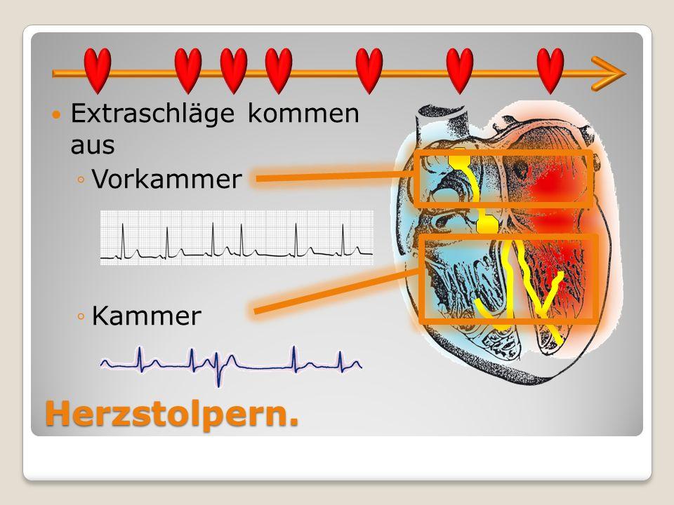 Herzstolpern. Extraschläge kommen aus Vorkammer Kammer