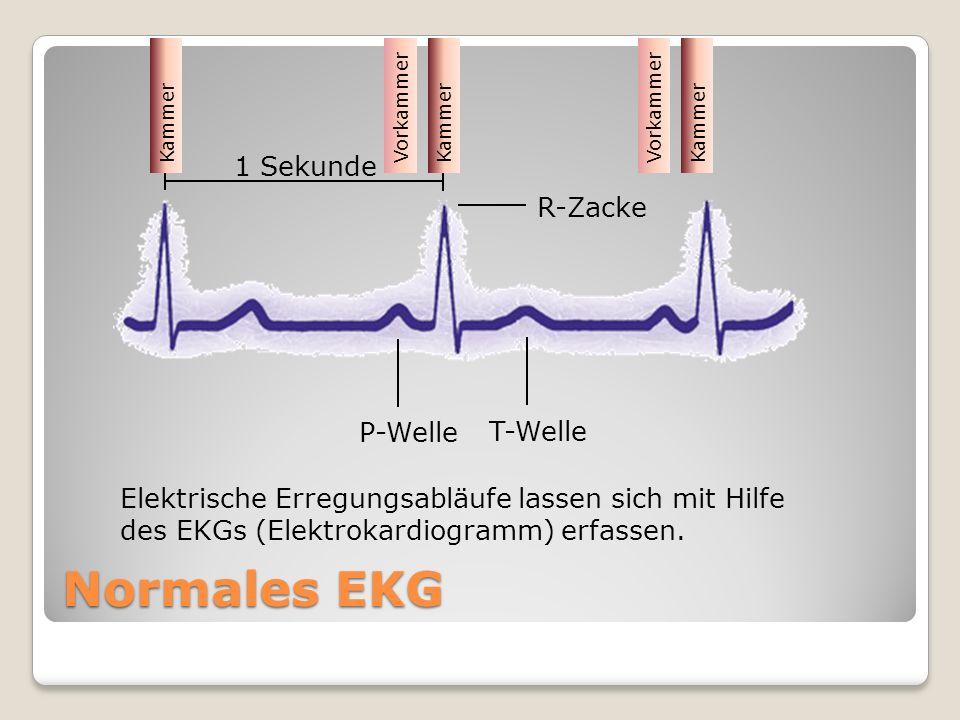 Elektrische Erregungsabläufe lassen sich mit Hilfe des EKGs (Elektrokardiogramm) erfassen. R-Zacke T-Welle P-Welle 1 Sekunde Normales EKG VorkammerKam