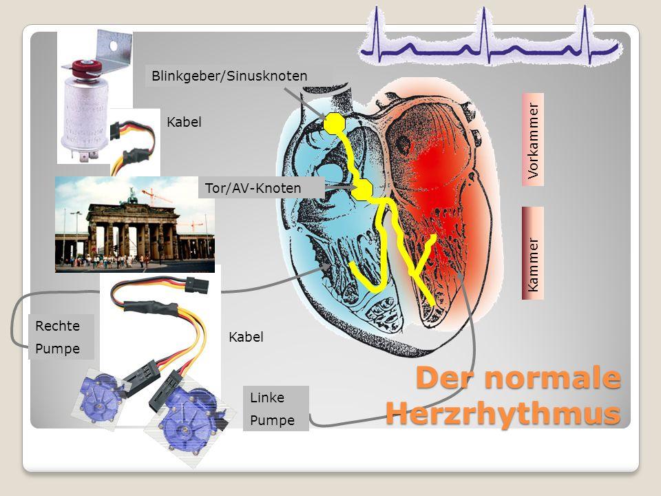 Kabel Linke Pumpe Rechte Pumpe Blinkgeber/Sinusknoten Tor/AV-Knoten Kabel Der normale Herzrhythmus Vorkammer Kammer