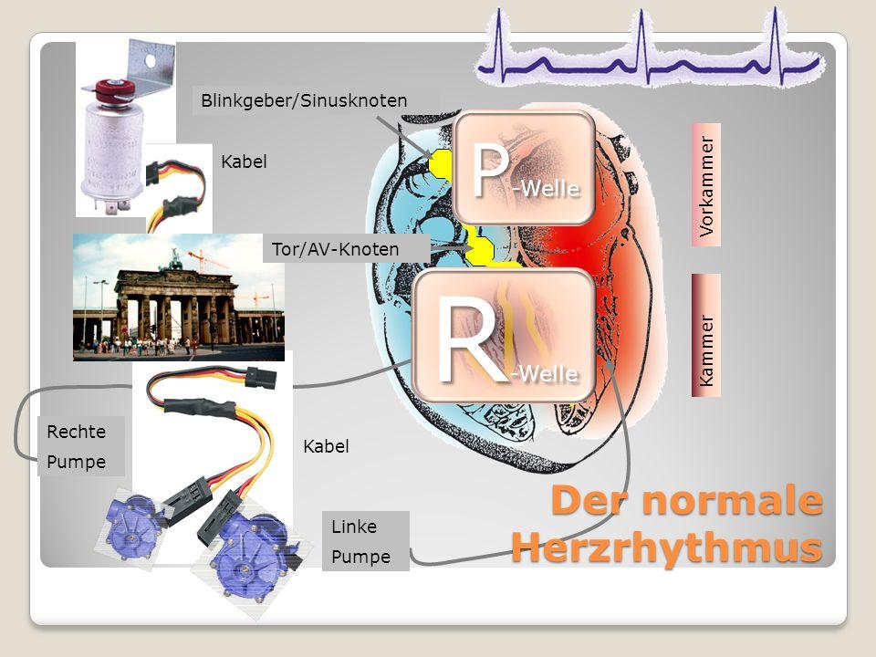 Kabel Linke Pumpe Rechte Pumpe Blinkgeber/Sinusknoten Tor/AV-Knoten Kabel Der normale Herzrhythmus Vorkammer Kammer P -Welle R -Welle