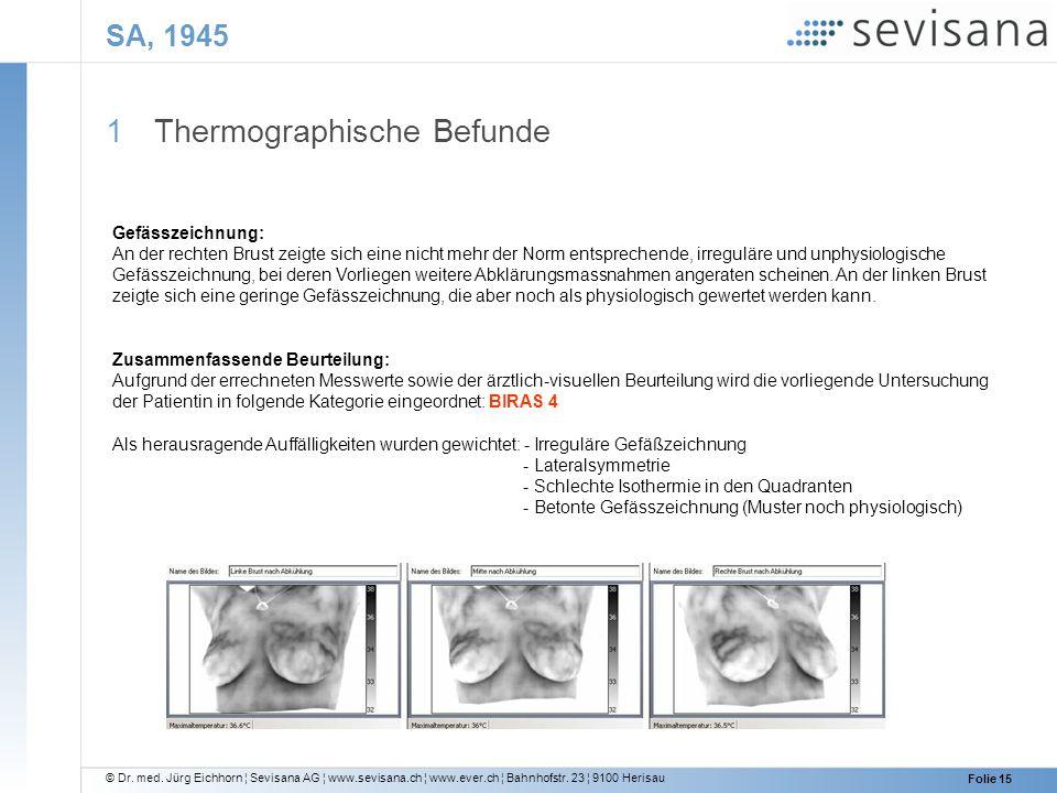 © Dr. med. Jürg Eichhorn ¦ Sevisana AG ¦ www.sevisana.ch ¦ www.ever.ch ¦ Bahnhofstr. 23 ¦ 9100 Herisau Folie 15 SA, 1945 1 Thermographische Befunde Ge