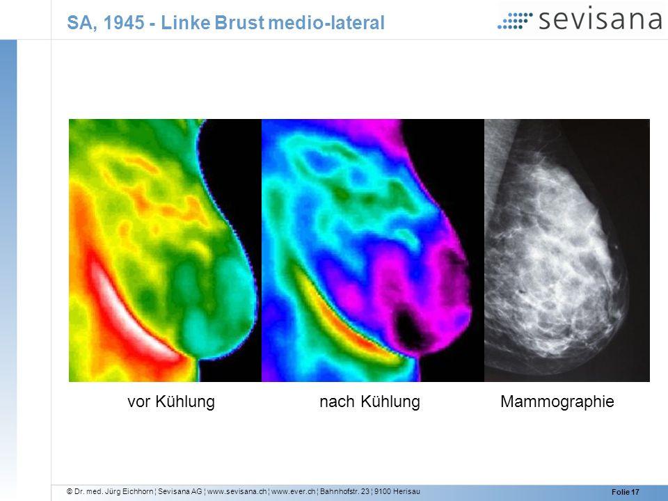 © Dr. med. Jürg Eichhorn ¦ Sevisana AG ¦ www.sevisana.ch ¦ www.ever.ch ¦ Bahnhofstr. 23 ¦ 9100 Herisau Folie 17 SA, 1945 - Linke Brust medio-lateral v