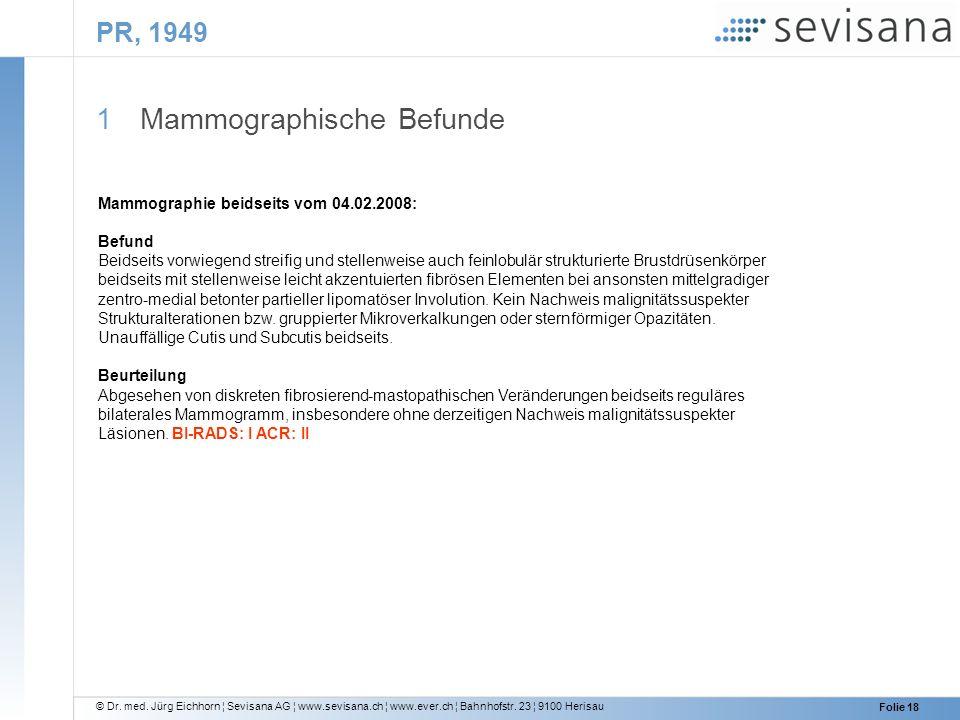© Dr. med. Jürg Eichhorn ¦ Sevisana AG ¦ www.sevisana.ch ¦ www.ever.ch ¦ Bahnhofstr. 23 ¦ 9100 Herisau Folie 18 PR, 1949 1 Mammographische Befunde Mam
