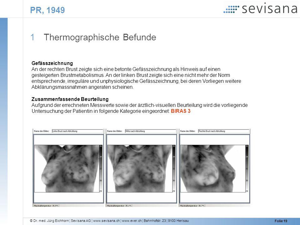 © Dr. med. Jürg Eichhorn ¦ Sevisana AG ¦ www.sevisana.ch ¦ www.ever.ch ¦ Bahnhofstr. 23 ¦ 9100 Herisau Folie 19 PR, 1949 1 Thermographische Befunde Ge