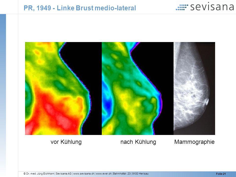 © Dr. med. Jürg Eichhorn ¦ Sevisana AG ¦ www.sevisana.ch ¦ www.ever.ch ¦ Bahnhofstr. 23 ¦ 9100 Herisau Folie 21 PR, 1949 - Linke Brust medio-lateral v
