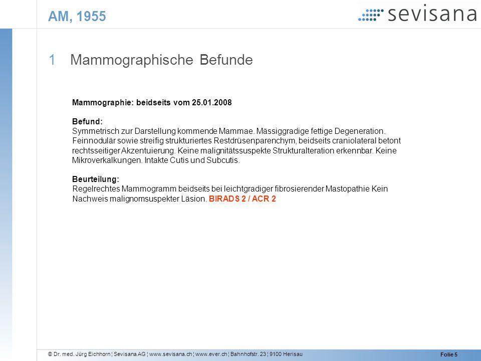 © Dr. med. Jürg Eichhorn ¦ Sevisana AG ¦ www.sevisana.ch ¦ www.ever.ch ¦ Bahnhofstr. 23 ¦ 9100 Herisau Folie 5 AM, 1955 1 Mammographische Befunde Mamm