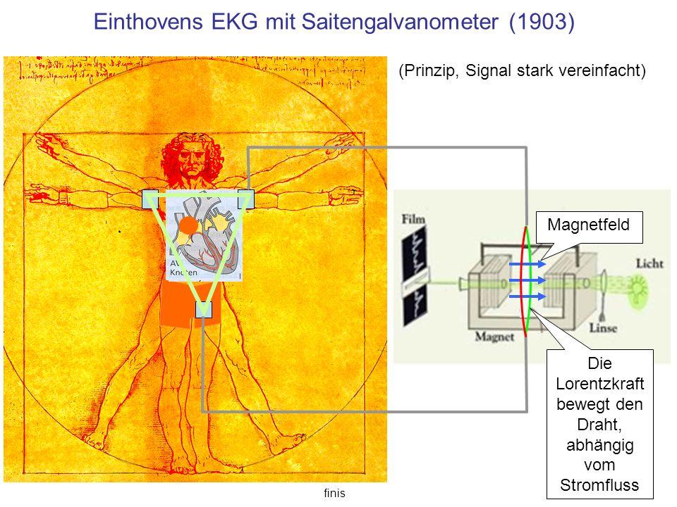 Einthovens EKG mit Saitengalvanometer (1903) finis Magnetfeld (Prinzip, Signal stark vereinfacht) Die Lorentzkraft bewegt den Draht, abhängig vom Stro