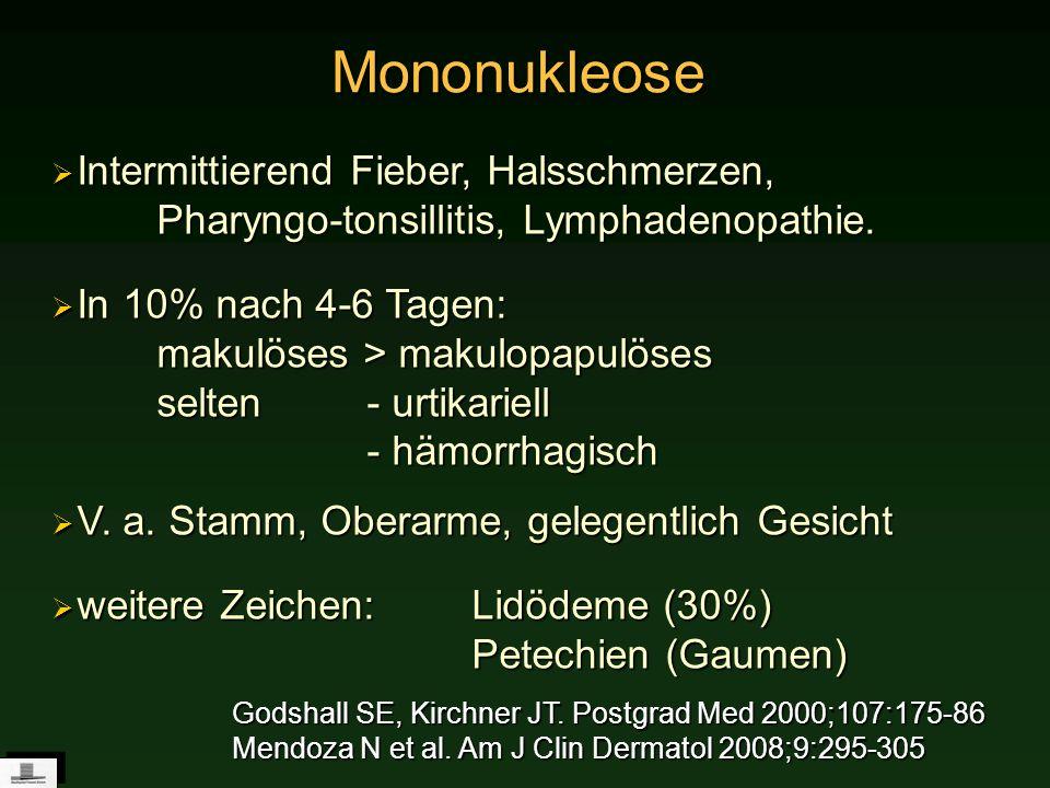 Mononukleose Mononukleose Intermittierend Fieber, Halsschmerzen, Pharyngo-tonsillitis, Lymphadenopathie. Intermittierend Fieber, Halsschmerzen, Pharyn