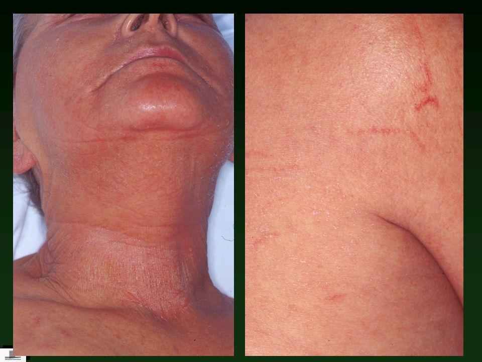 Toxin-vermittelte Erkrankungen Staphylococcal scalded-skin syndrome Staphylococcal scalded-skin syndrome Toxic shock syndrome (staphylogen / streptogen) Scharlach (streptogen/staphylogen) Scharlach (streptogen/staphylogen) Toxin-vermittelte Erytheme (z.B.