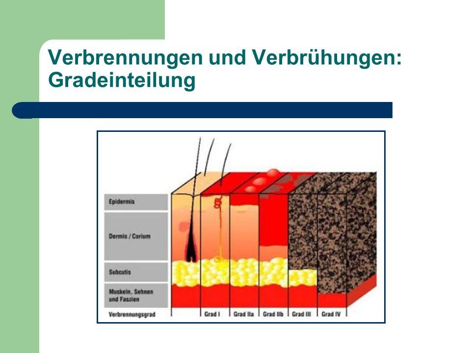Verbrennungen und Verbrühungen: Gradeinteilung