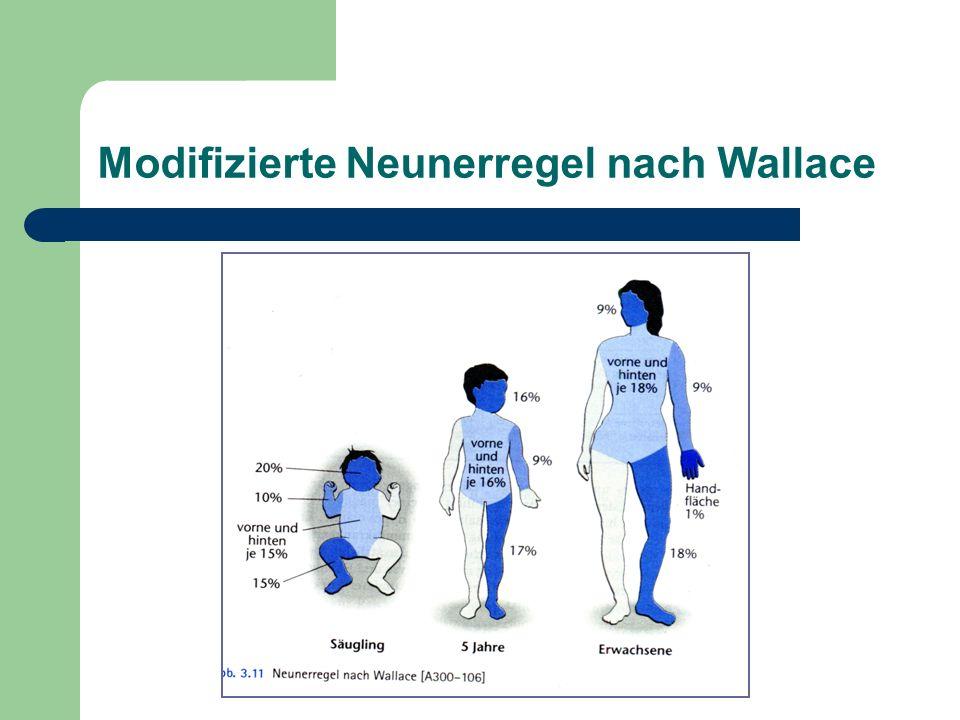 Modifizierte Neunerregel nach Wallace