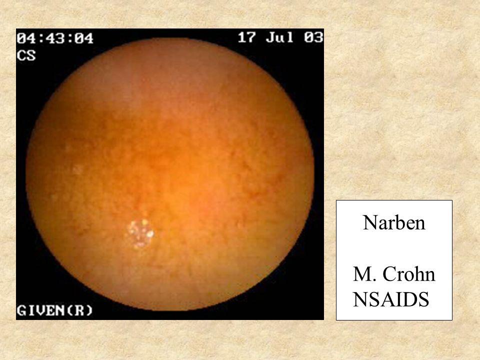 Narben M. Crohn NSAIDS
