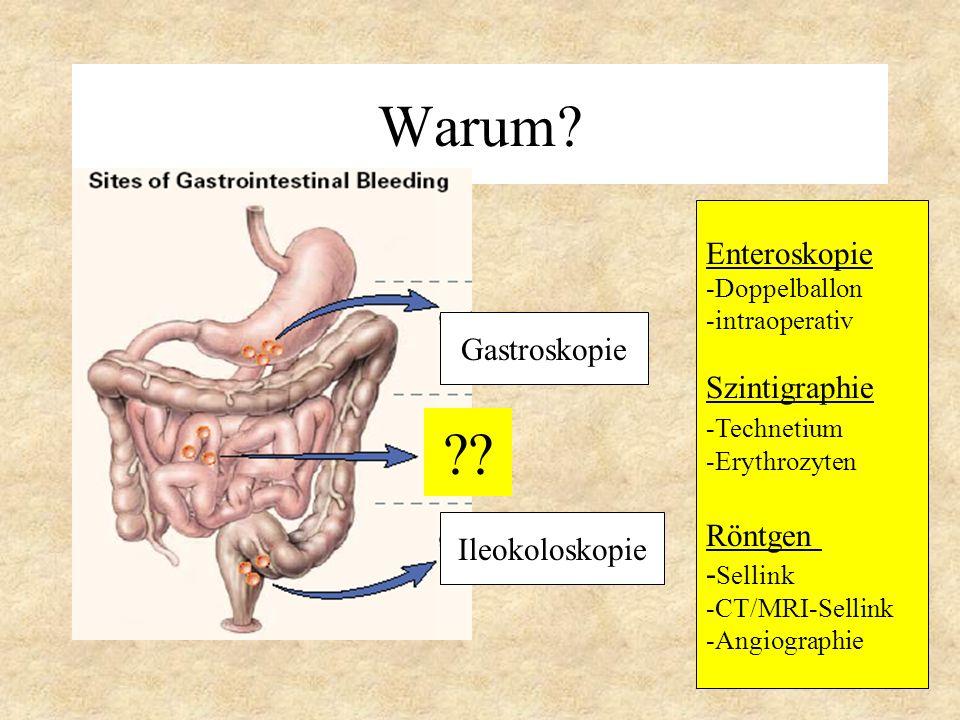 Warum? Gastroskopie Ileokoloskopie ?? Enteroskopie -Doppelballon -intraoperativ Szintigraphie -Technetium -Erythrozyten Röntgen - Sellink -CT/MRI-Sell