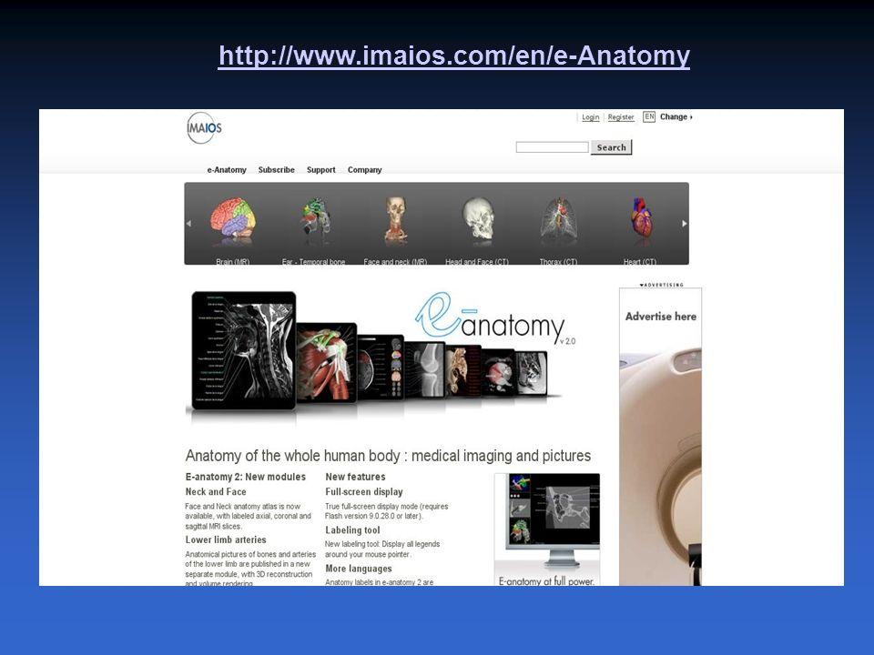 http://www.imaios.com/en/e-Anatomy