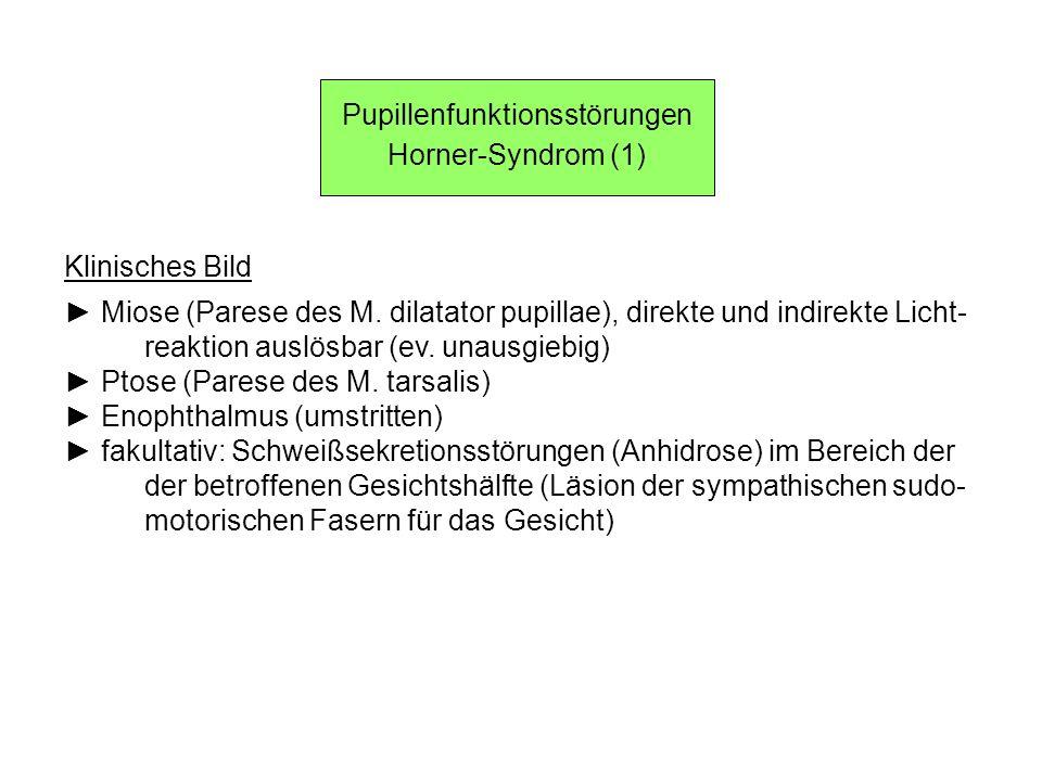 Pupillenfunktionsstörungen Horner-Syndrom (1) Klinisches Bild Miose (Parese des M. dilatator pupillae), direkte und indirekte Licht- reaktion auslösba