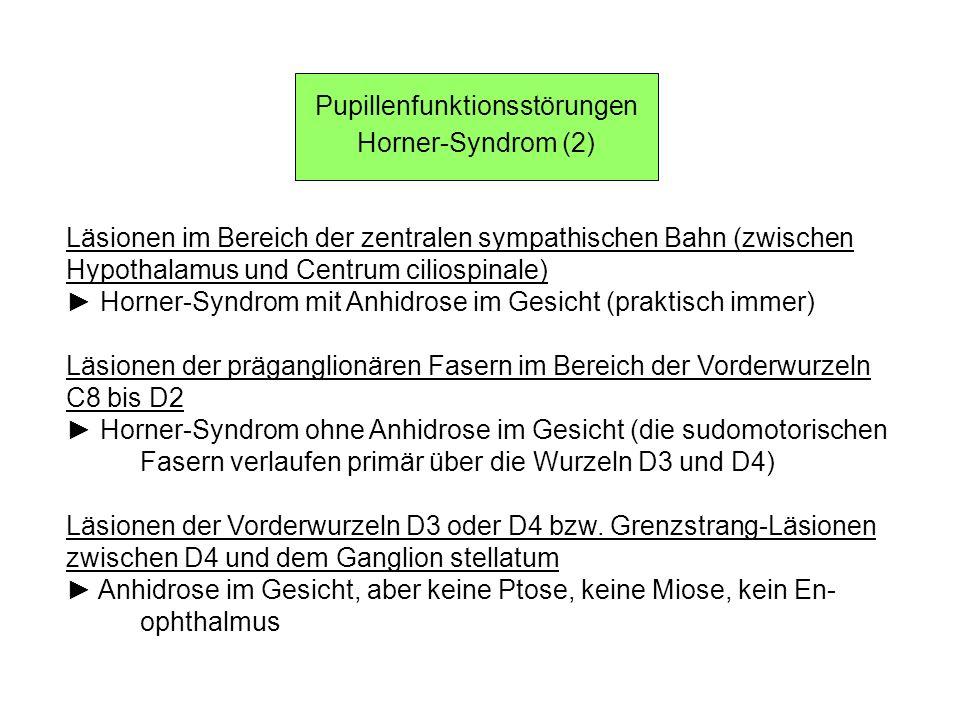 Pupillenfunktionsstörungen Horner-Syndrom (2) Läsionen im Bereich der zentralen sympathischen Bahn (zwischen Hypothalamus und Centrum ciliospinale) Ho