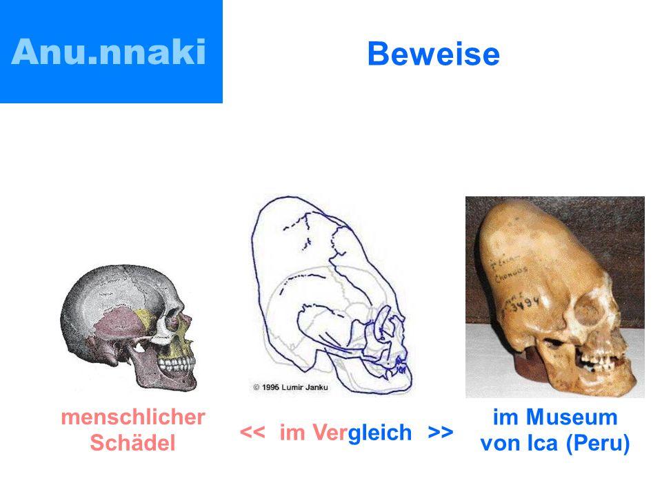 Anu.nnaki Beweise im Museum von Ica (Peru) menschlicher Schädel >