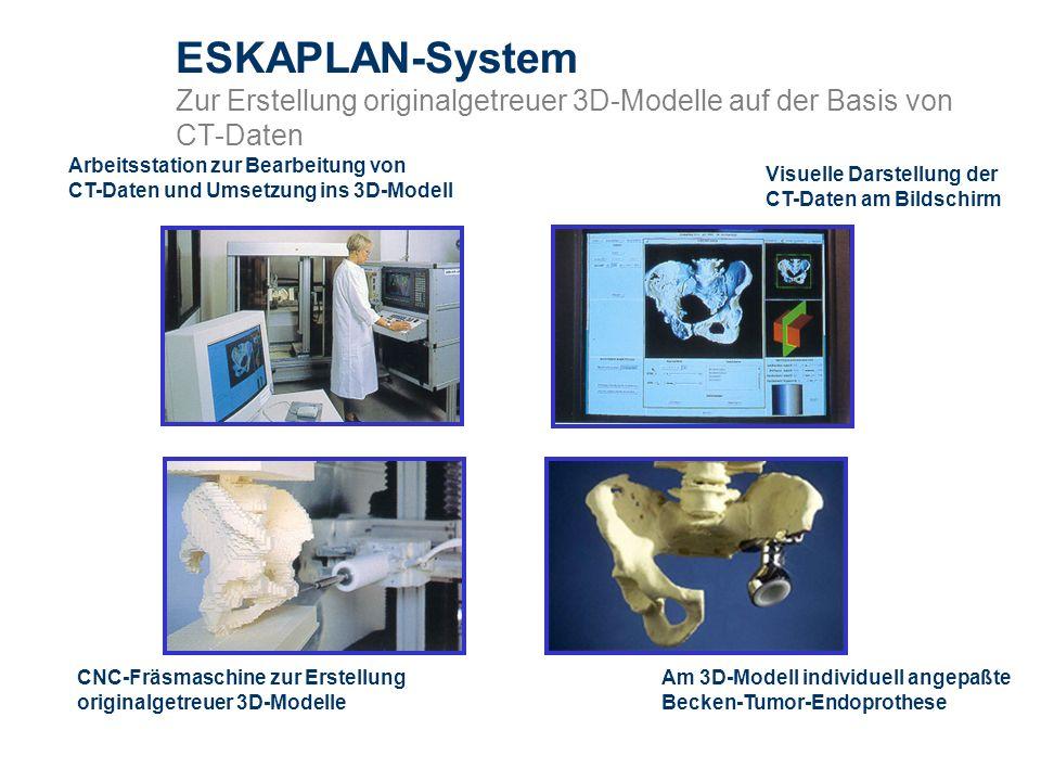 ESKAPLAN-System Zur Erstellung originalgetreuer 3D-Modelle auf der Basis von CT-Daten Visuelle Darstellung der CT-Daten am Bildschirm Am 3D-Modell ind