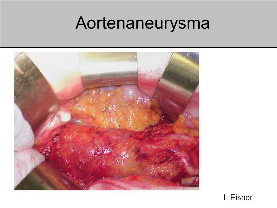 Aortenaneurysma L.Eisner
