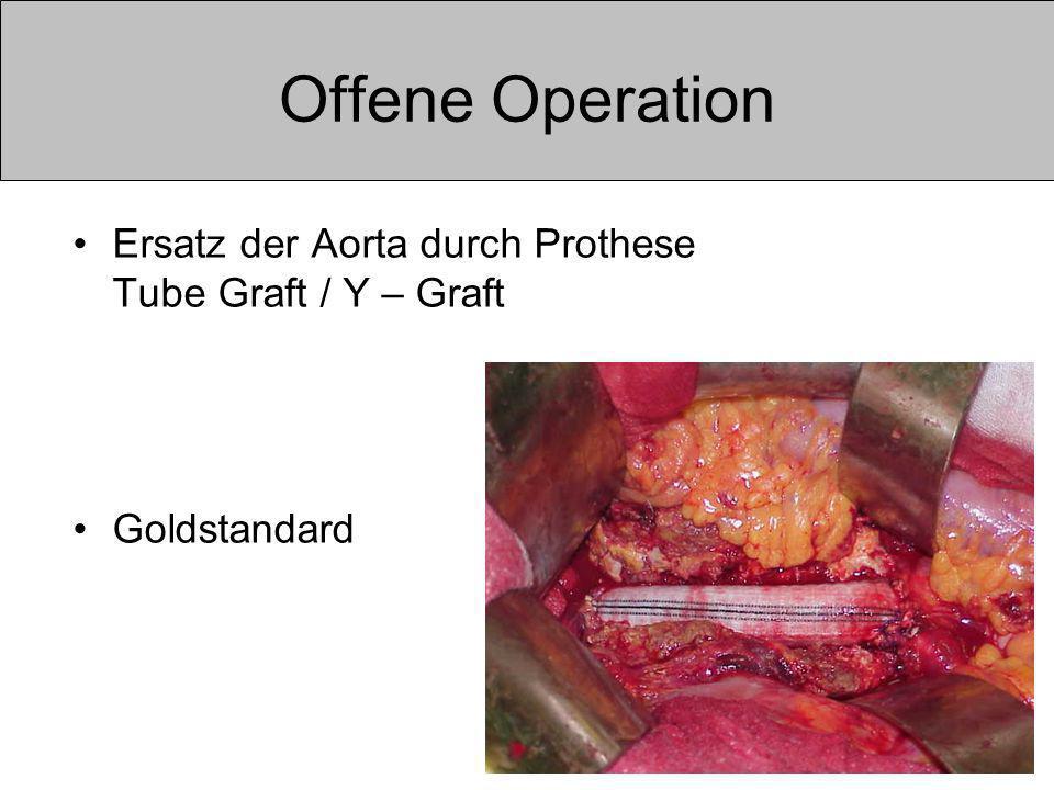 Offene Operation Ersatz der Aorta durch Prothese Tube Graft / Y – Graft Goldstandard