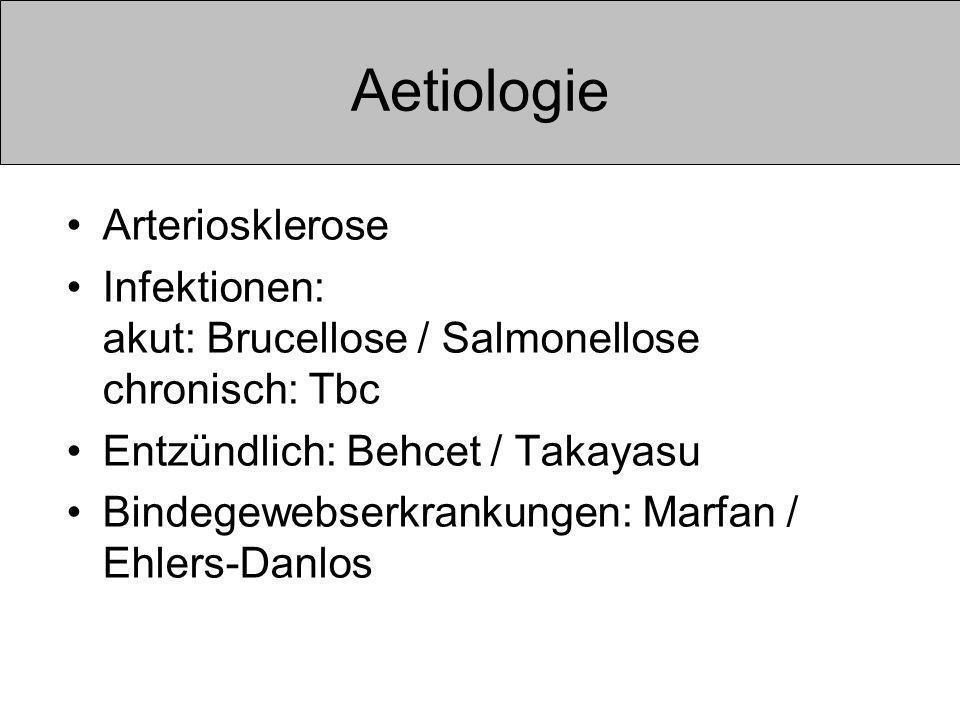 Aetiologie Arteriosklerose Infektionen: akut: Brucellose / Salmonellose chronisch: Tbc Entzündlich: Behcet / Takayasu Bindegewebserkrankungen: Marfan / Ehlers-Danlos