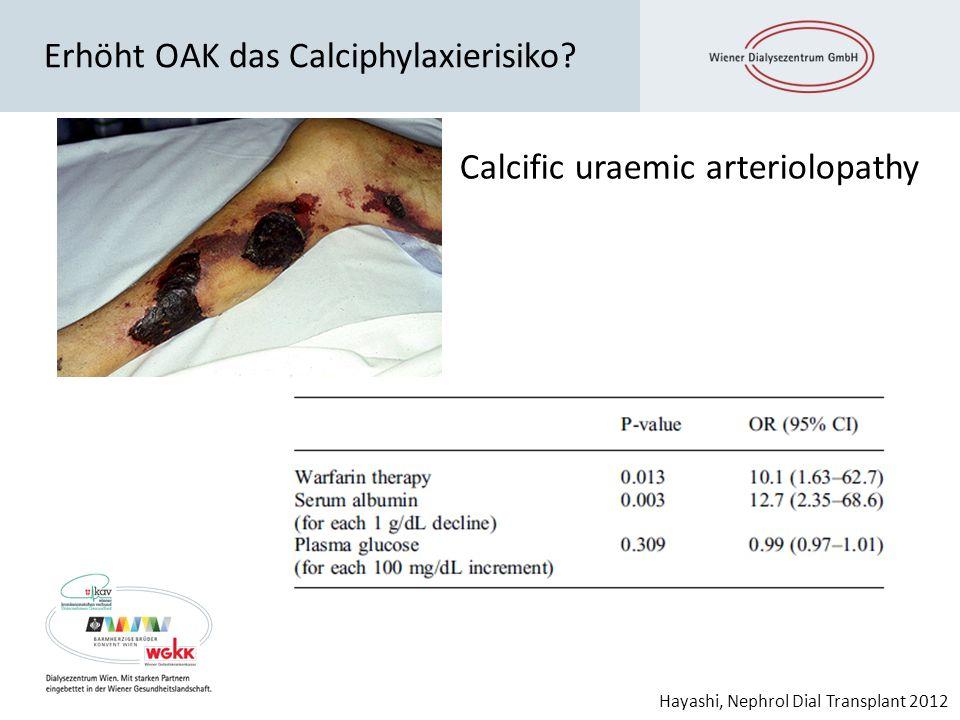 Erhöht OAK das Calciphylaxierisiko? Hayashi, Nephrol Dial Transplant 2012 Calcific uraemic arteriolopathy