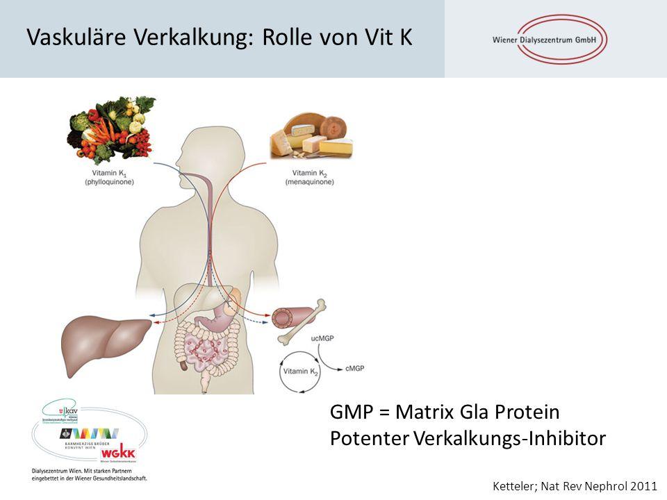 Vaskuläre Verkalkung: Rolle von Vit K Ketteler; Nat Rev Nephrol 2011 GMP = Matrix Gla Protein Potenter Verkalkungs-Inhibitor
