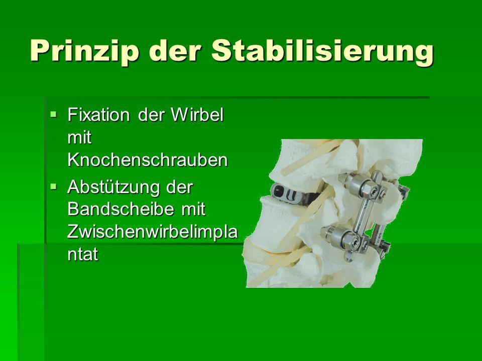 Prinzip der Stabilisierung Fixation der Wirbel mit Knochenschrauben Fixation der Wirbel mit Knochenschrauben Abstützung der Bandscheibe mit Zwischenwi