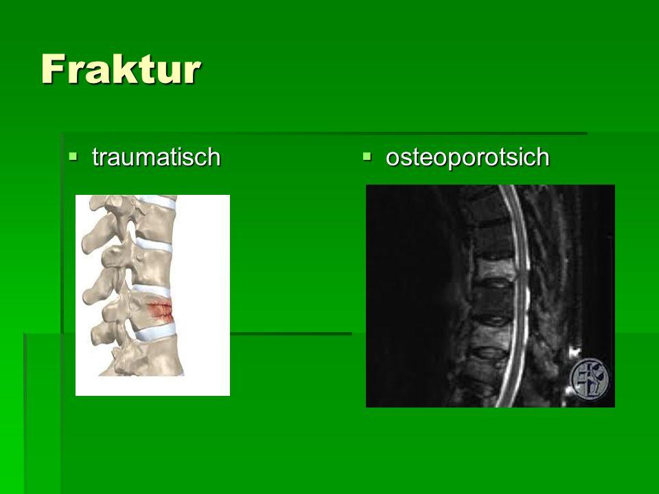 Fraktur traumatisch traumatisch osteoporotsich osteoporotsich