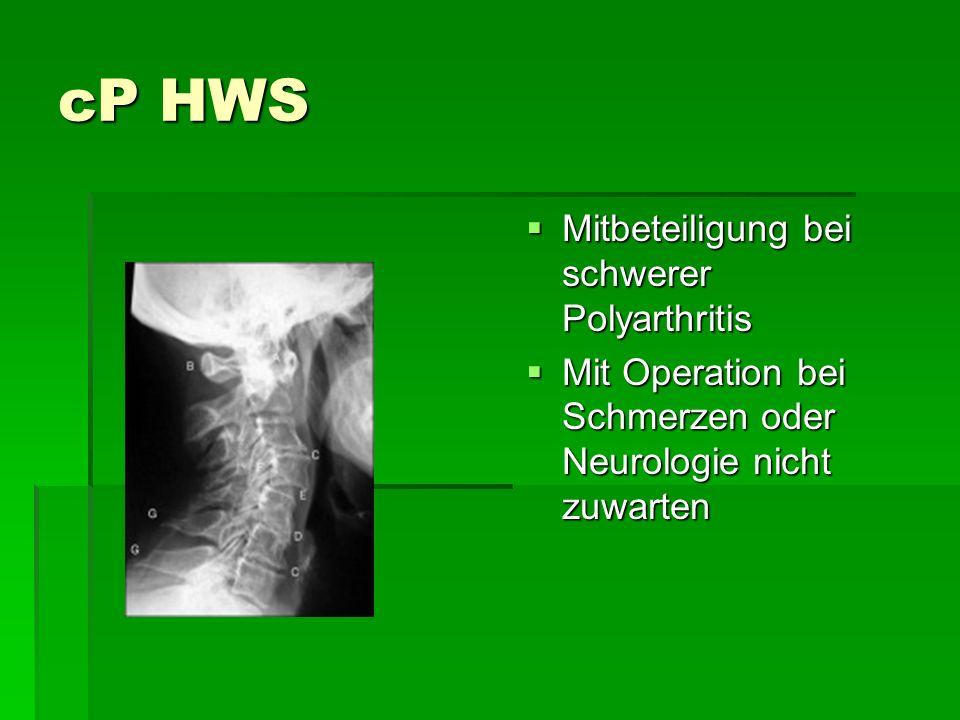 cP HWS Mitbeteiligung bei schwerer Polyarthritis Mitbeteiligung bei schwerer Polyarthritis Mit Operation bei Schmerzen oder Neurologie nicht zuwarten