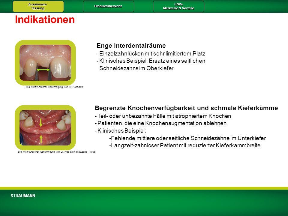 Zusammen-fassungProduktübersichtUSPs Merkmale & Vorteile STRAUMANN NNC-Kennzeichnung bei neuer Chirurgiekassette hinzugefügt