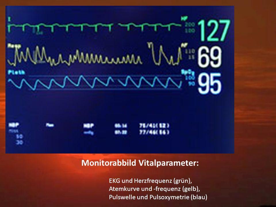 Monitorabbild Vitalparameter: EKG und Herzfrequenz (grün), Atemkurve und -frequenz (gelb), Pulswelle und Pulsoxymetrie (blau)