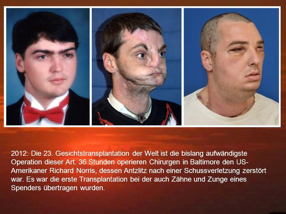 2012: Die 23. Gesichtstransplantation der Welt ist die bislang aufwändigste Operation dieser Art. 36 Stunden operieren Chirurgen in Baltimore den US-