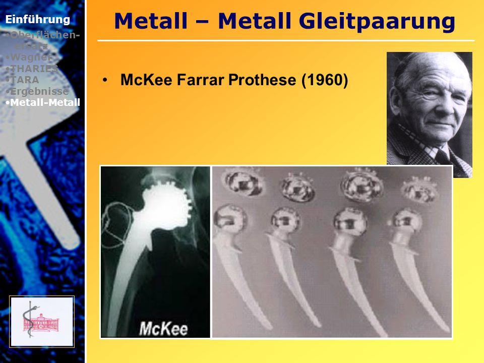 Metall – Metall Gleitpaarung Einführung Oberflächen- ersatz Wagner THARIES TARA Ergebnisse Metall-Metall McKee Farrar Prothese (1960)