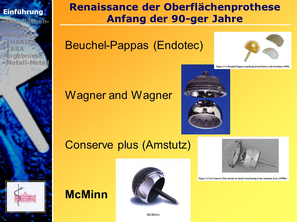 Renaissance der Oberflächenprothese Anfang der 90-ger Jahre Einführung Oberflächen- ersatz Wagner THARIES TARA Ergebnisse Metall-Metall Beuchel-Pappas