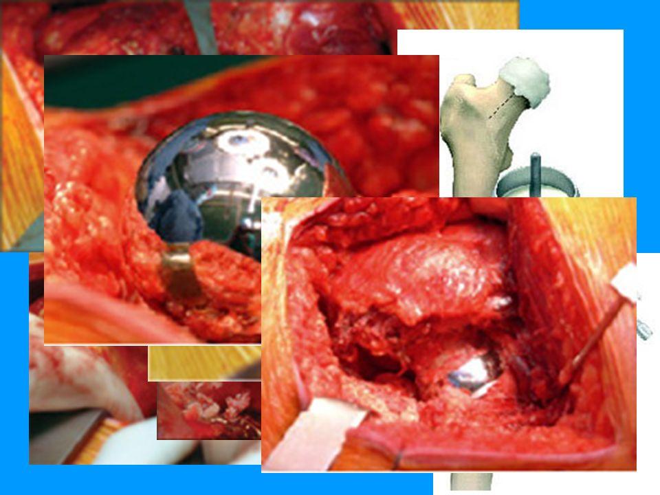 Eigene Erfahrungen Einführung Oberflächen- ersatz Wagner THARIES TARA Ergebnisse Metall-Metall Mc Minn Epidemiologie Indikationen Patient Ergebnisse OP-Zeit:125 min Ø (Schaftprothese : 81 min) Transfusionen:32,3 % (Schaftprothese : 40,6 %) Krankenhausverweildauer: 15,5 d Ø (Schaftprothese : 13,2 d Ø)