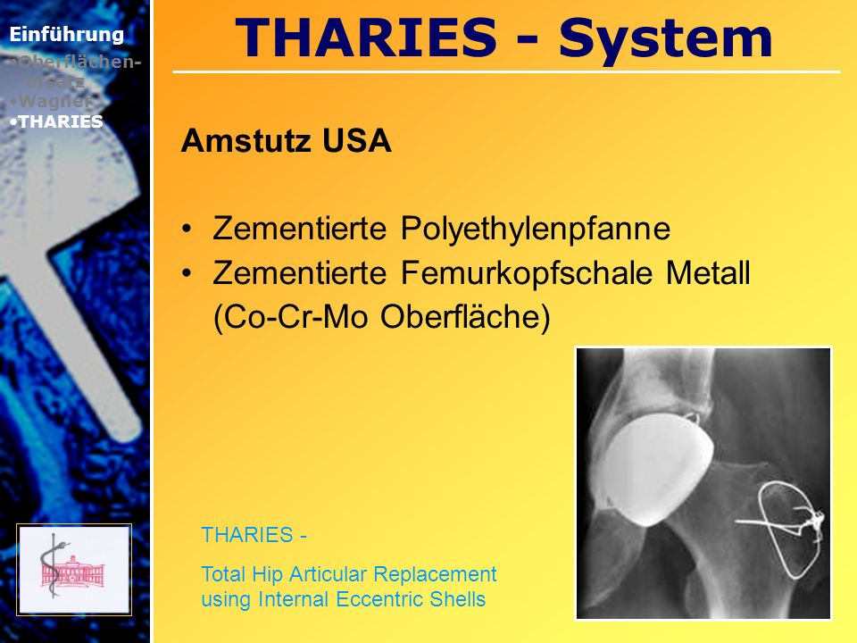 THARIES - System Amstutz USA Zementierte Polyethylenpfanne Zementierte Femurkopfschale Metall (Co-Cr-Mo Oberfläche) Einführung Oberflächen- ersatz Wag