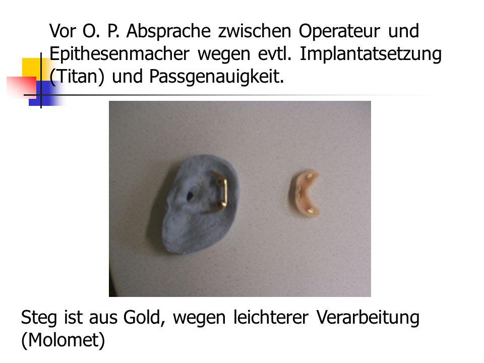Vor O. P. Absprache zwischen Operateur und Epithesenmacher wegen evtl. Implantatsetzung (Titan) und Passgenauigkeit. Steg ist aus Gold, wegen leichter