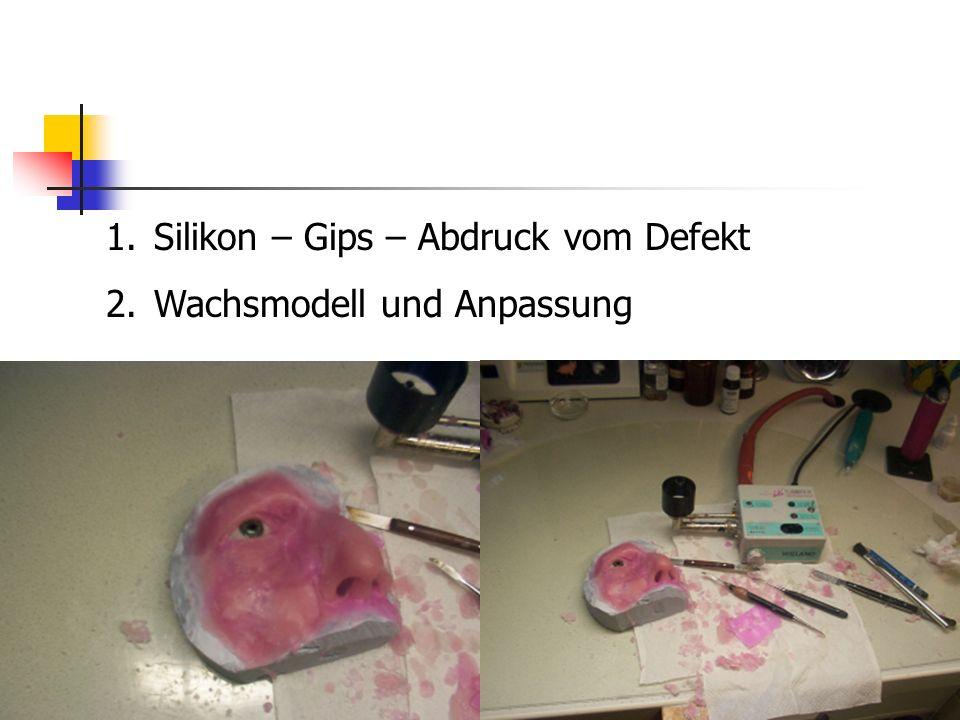 1.Silikon – Gips – Abdruck vom Defekt 2.Wachsmodell und Anpassung