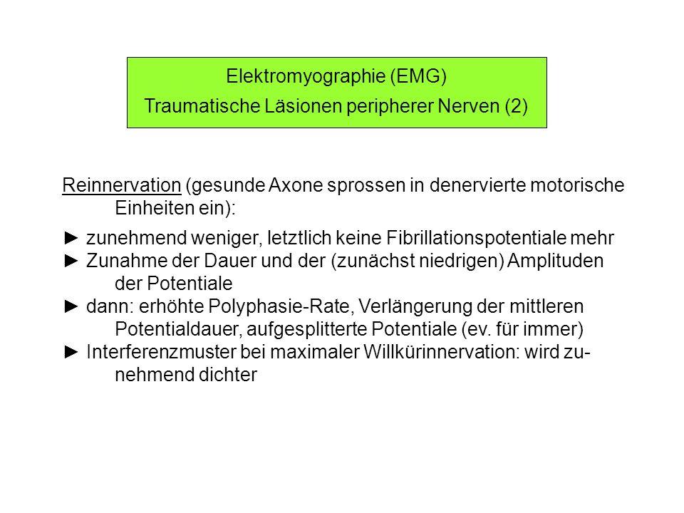 Elektromyographie (EMG) Traumatische Läsionen peripherer Nerven (2) Reinnervation (gesunde Axone sprossen in denervierte motorische Einheiten ein): zu